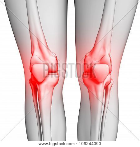 Human Knee Pain Artwork