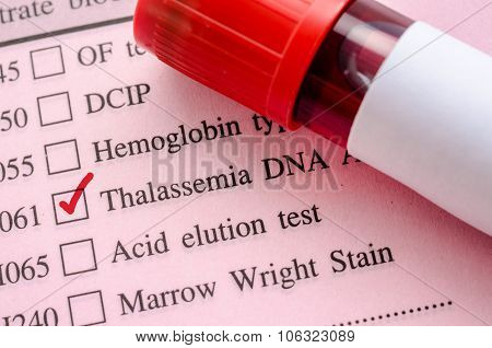 Sample Blood In Blood Tube For Thalassemia Dna Test.