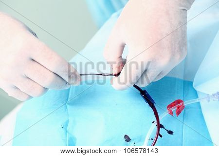 Blood Catheter Fixed By Doctor