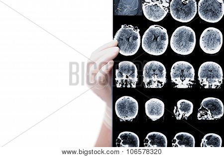 Ct Picture In Doctor Hands Isolated On White Background