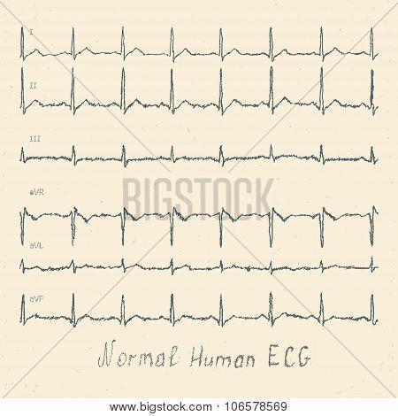Normal Human Ecg Hand-drawn Vector