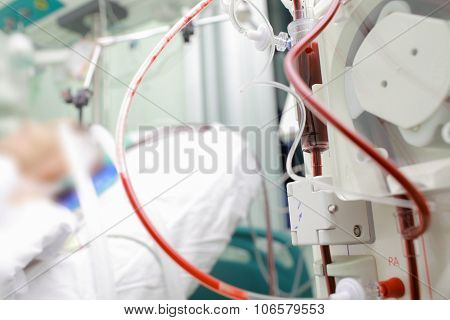 Patient On Cardiopulmonary Bypass Device In The Intensive Care