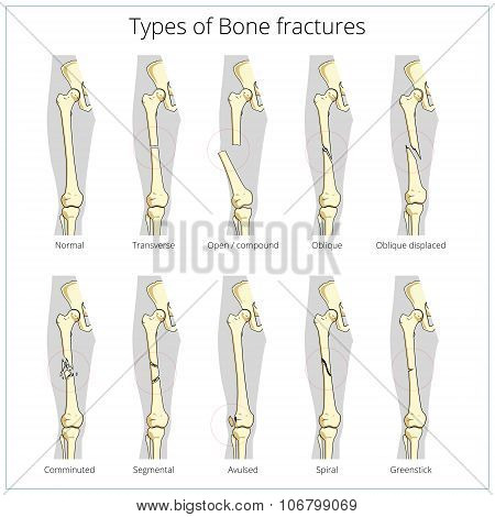 Types of bone fractures medical educational vector