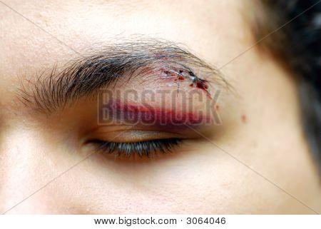 Injured Eye