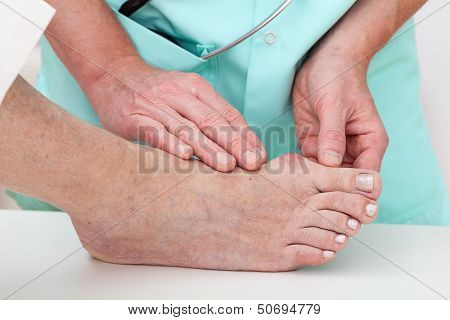 Health Problems - Hallux