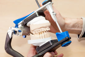 picture of overbite  - device used in Making Prosthetic Facial Dental Isolated on Wooden Table - JPG