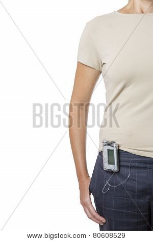 Young Woman Wearing An Insulin Pump.