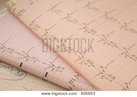 Cardiological Test Results 2