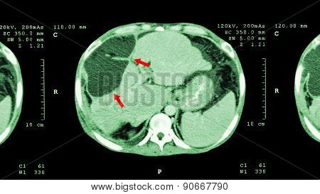 Ct Scan Of Upper Abdomen : Show Abnormal Mass At Liver ( Liver Cancer )