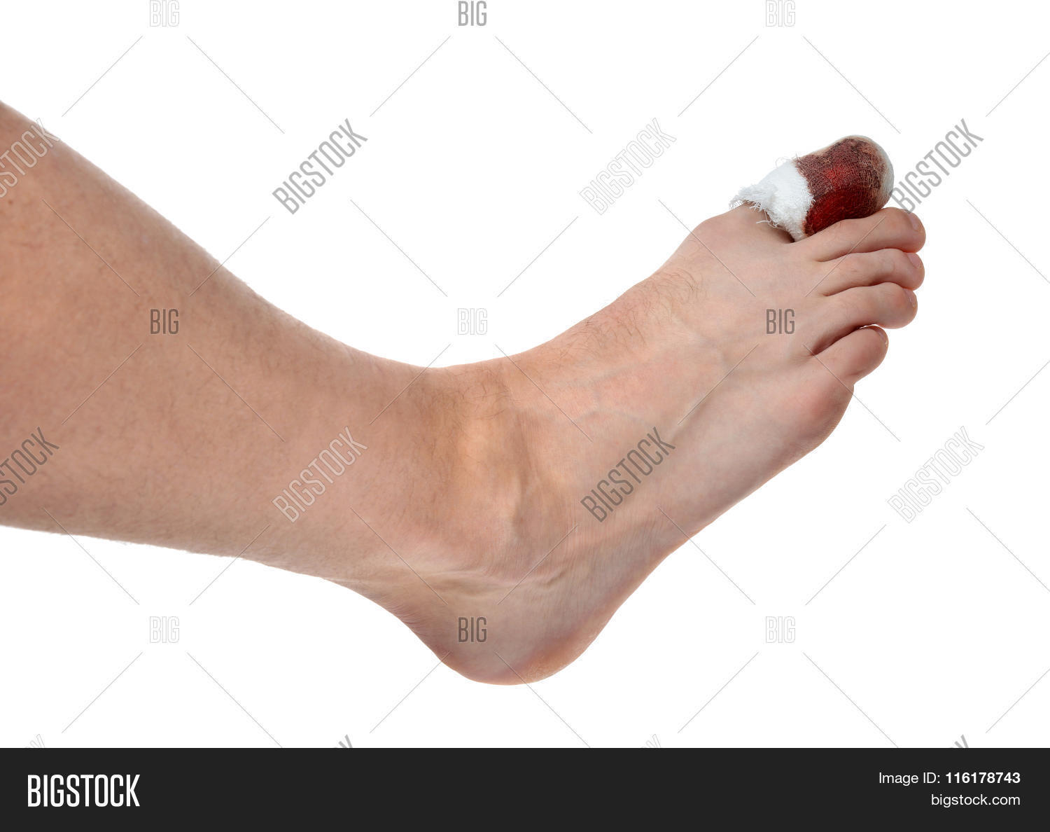 Mans Leg With Blood Bandaged Painful Big Toe Leg Area Isolated ...