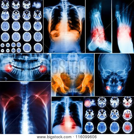 The Collage of human X-rays body photo