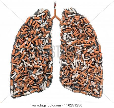 Cigarette Butts In Pulmonary Contour
