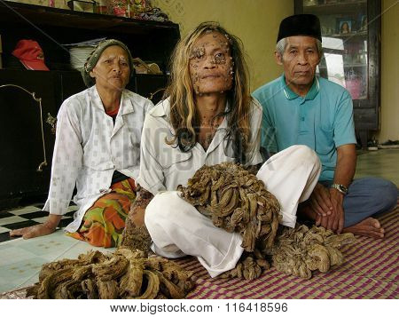 The 'Tree Man of Indonesia', Dede Koswara
