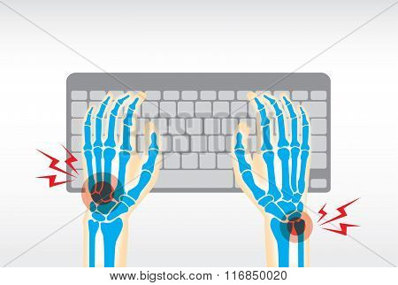 Hand pain from use keyboard