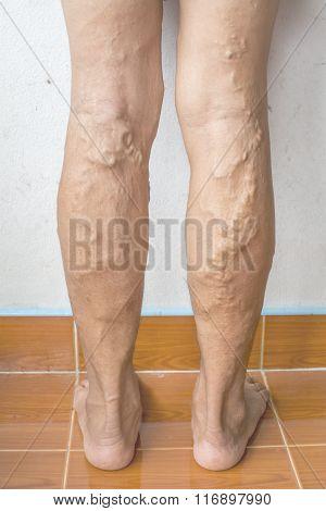 irregular varicose veins