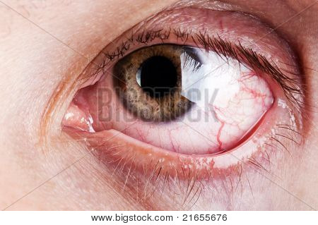 Blood Capillary Human Eye