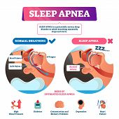 Sleep Apnea Vector Illustration. Labeled Nasal Tongue Blocked Airway Scheme. Diagram With Normal And poster