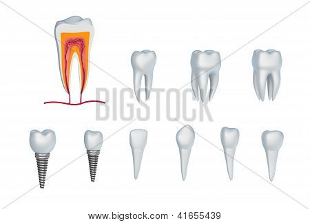 Set of teeth and implants. Isolated on white