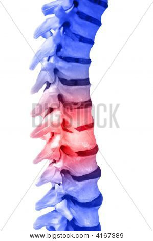 Spinal Column Pain