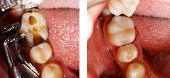 picture of molar tooth  - The aesthetic restoration of a lower molar tooth with composite resin - JPG
