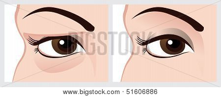 Baggy eyes.