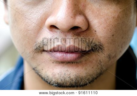 Close Up Of Man On Mouth And Nose.