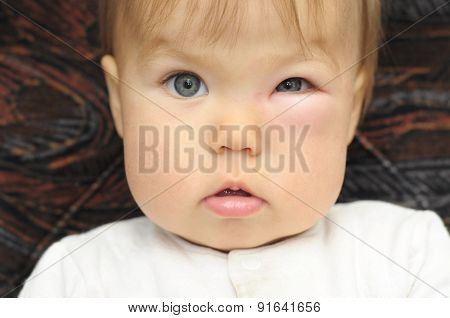 Baby With A Swollen Eye From An Insect Bite