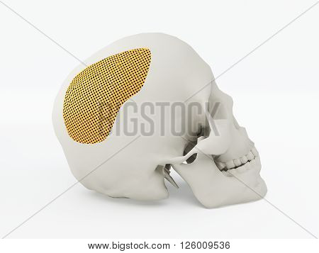 3d printed human skull. 3d printed implants on white background. 3d illustration.