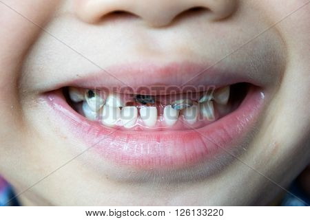 Dental medicine and healthcare - kids patient open mouth showing caries teeth decay