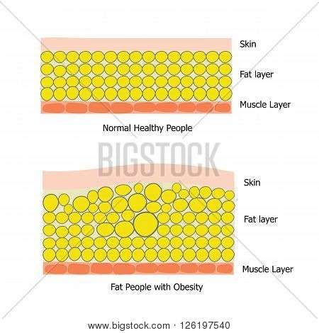 Infographic about fat people and healthy people which the obesity people has big fat cell and got unhealthy