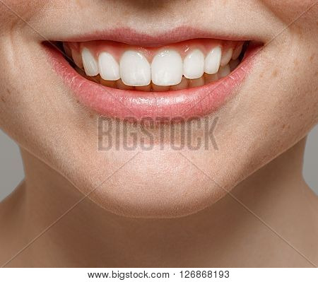Healthy Smile. Teeth Whitening. Beautiful Woman.