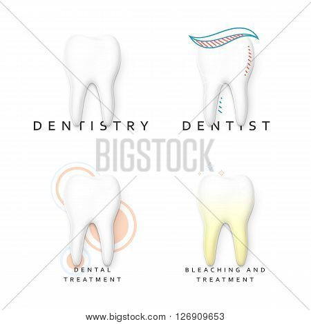 Set of 4 teeth realistic isolated on white background. White tooth for dental services. Yellow teeth. Tooth with tooth decay. Molar. Teeth whitening. Tooth for a banner. Advertising dentistry.
