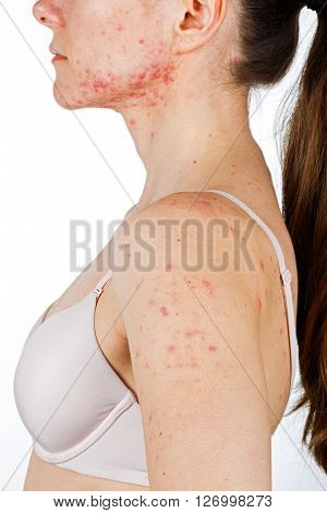 Photo of young girl with skin problem