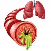 Bronchitis Anatomy Concept As An Inflammation Of Bronchial Tube Lining With Thick Mucus Secreted As  poster
