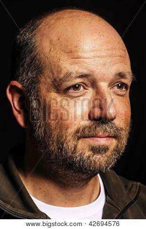 Baldness Man