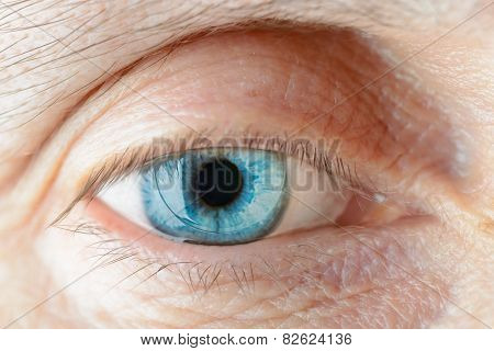 Contact Lens On The Eye