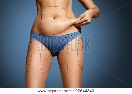 Woman Pinched Her Fat On Body. Body With Marked Zones For Liposuction