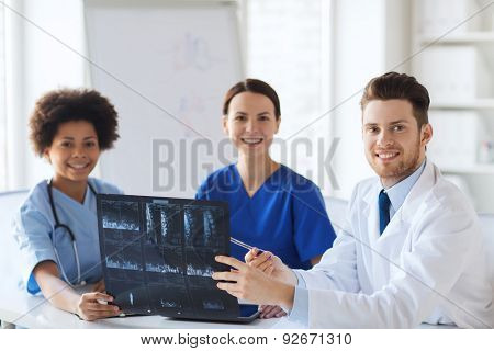radiology, people and medicine concept - group of happy doctors looking to and discussing x-ray image at hospital
