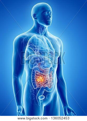 3d rendered, medically accurate illustration of small intestine cancer