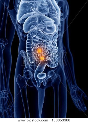 3d rendered, medically accurate illustration of intestinal cancer