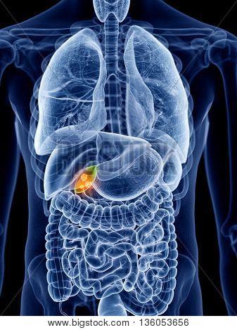 3d rendered, medically accurate illustration of gallbladder cancer