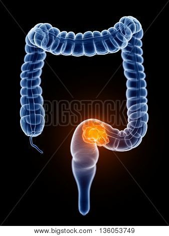 3d rendered, medically accurate illustration of colorectal cancer