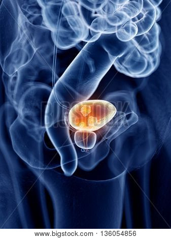 3d rendered, medically accurate illustration of bladder cancer