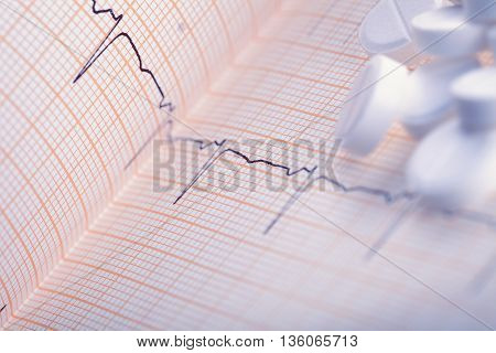 White pills on the ECG paper. Medical background