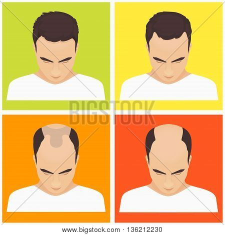Male hair loss stages set on multicolored background. Male pattern baldness. Different stages of hair loss in man. Transplantation of hair. Human hair growth. Hair care concept. Vector illustration.
