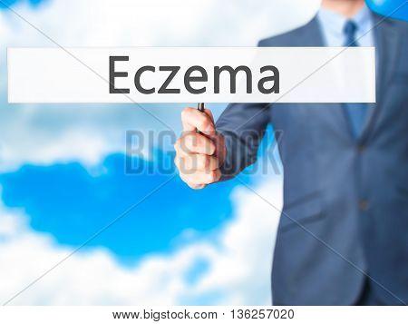 Eczema - Businessman Hand Holding Sign