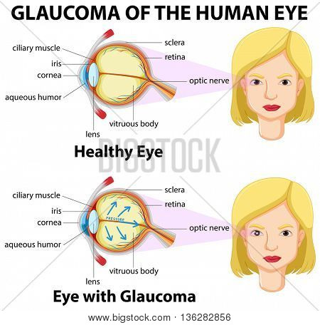 Glaucoma of the human eye illustration