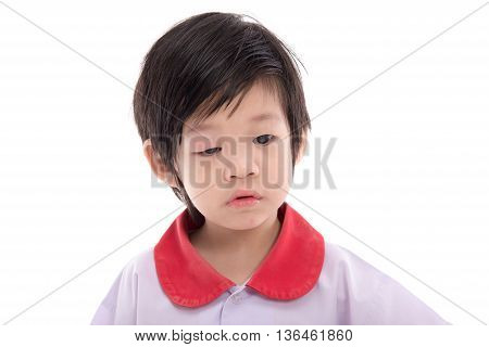 Cute asian child with a swollen eyelid on white background isolated