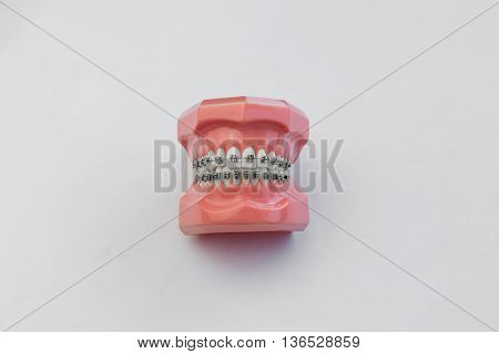 Artificial human jaw with perfect teeth and braces