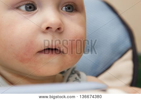 Photo of baby with red cheek - diathesis
